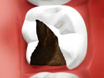 Amalgam-free Dental filling